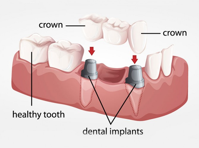 What Is Dental Implants Vacations Dental Implants Vacations