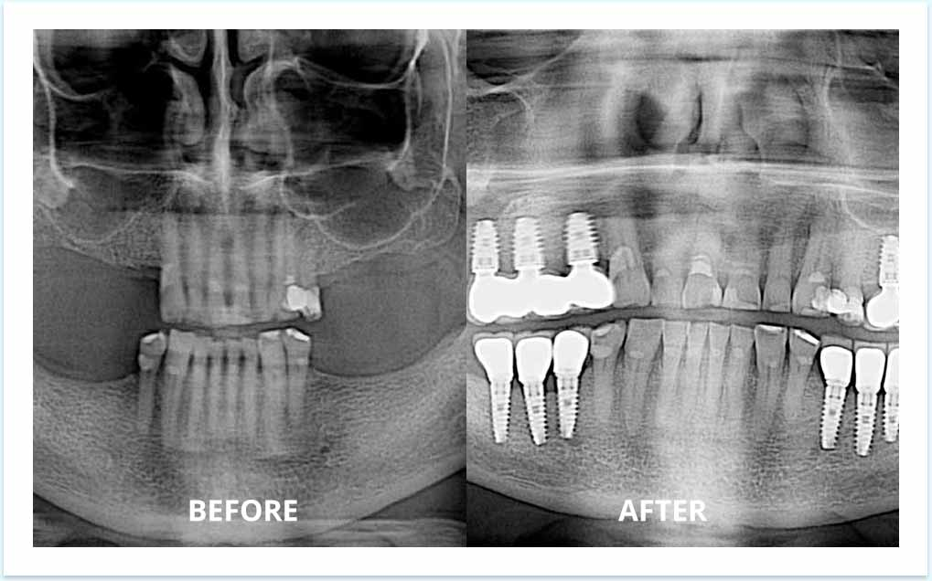 bridge-implants-before-after-dental