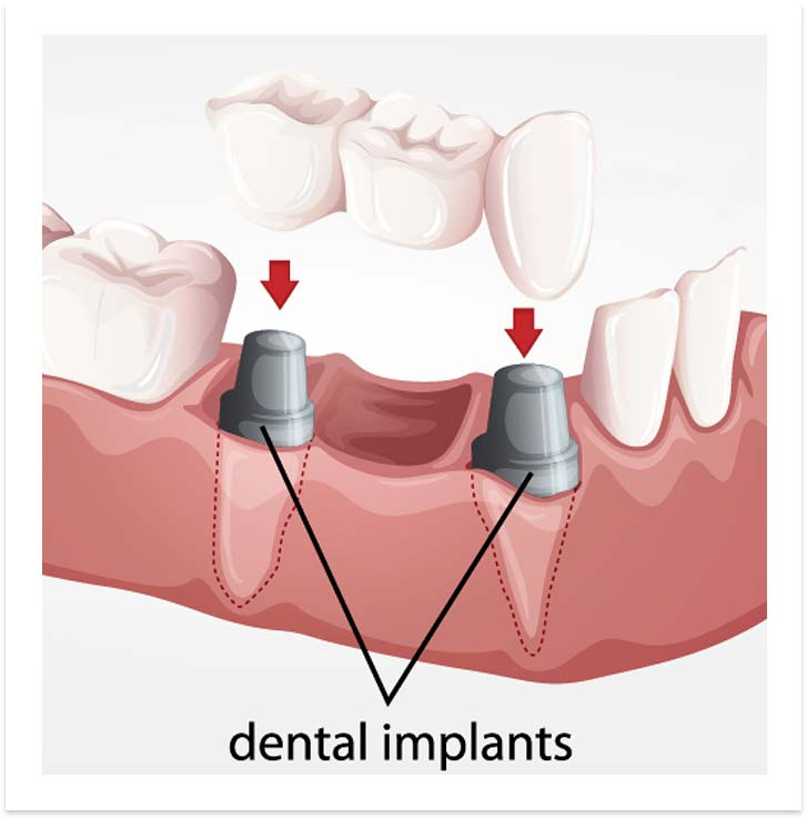 image-bridge-implants-dental