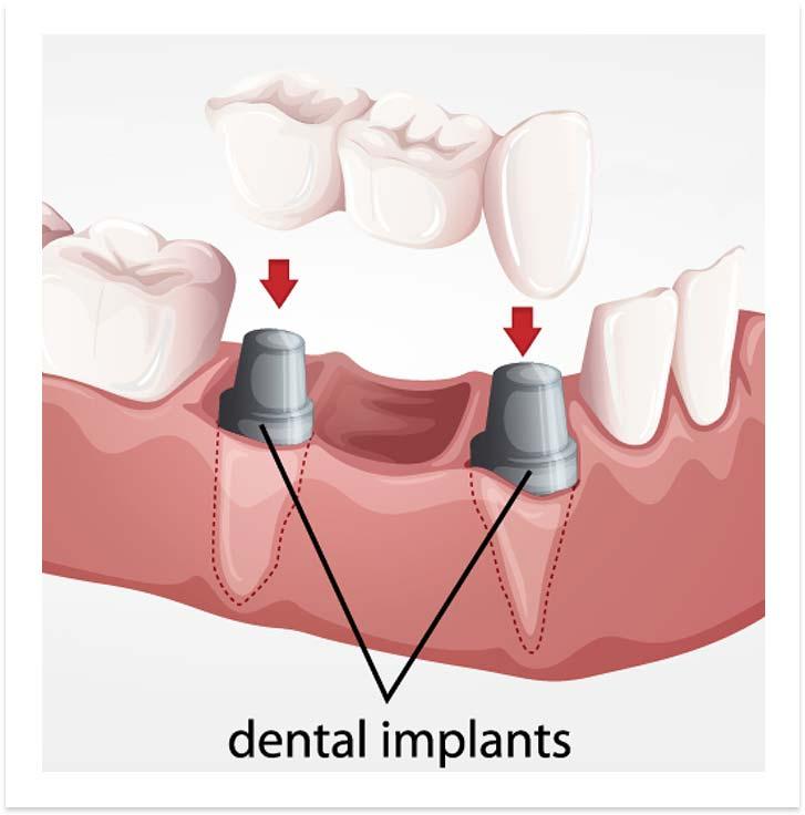 image-bridge-implants-dental