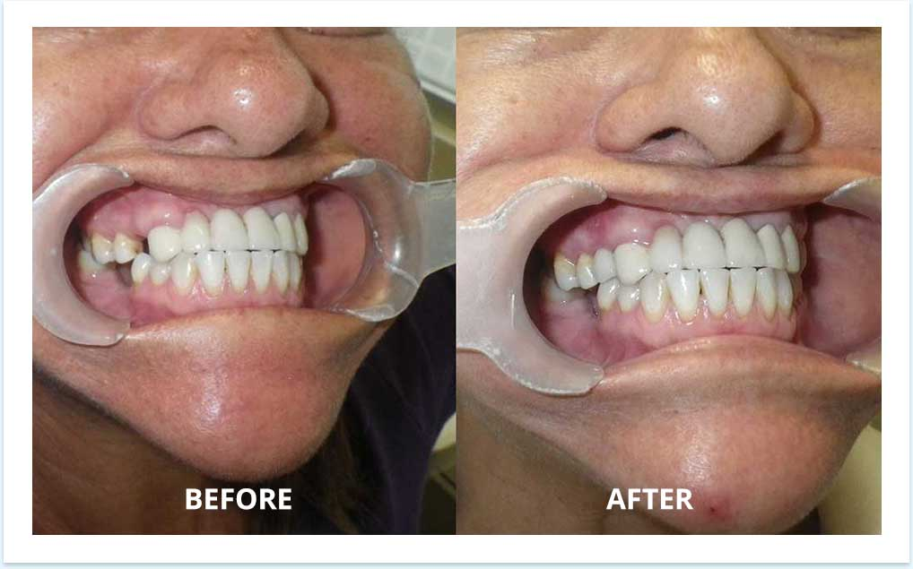 single-implant-before-after-dental
