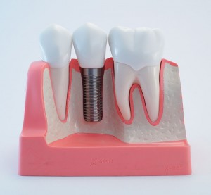 Single implant - Dental Implants Vacations