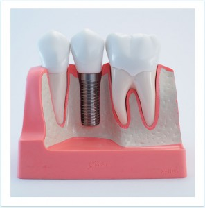 Single Implant at Dental Implants