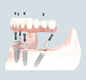 All on 4 - Dental Implants Vacations