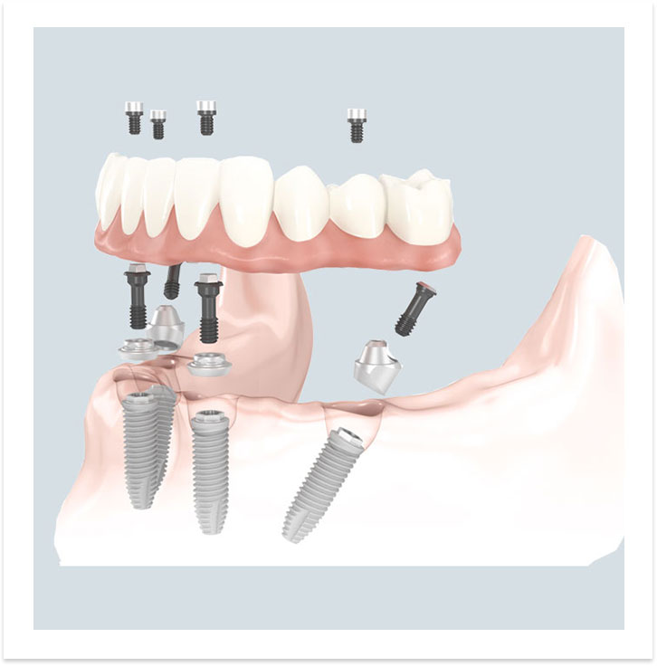 image-all-on-4-dental-implants