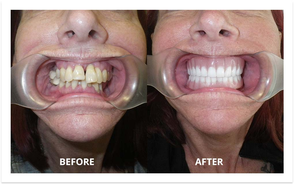image-before-after-dental-implants