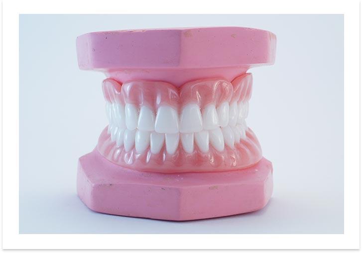 image-denture-dental-single-implant
