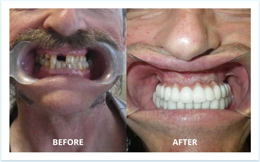 all-on-6-before-after-dental-implants