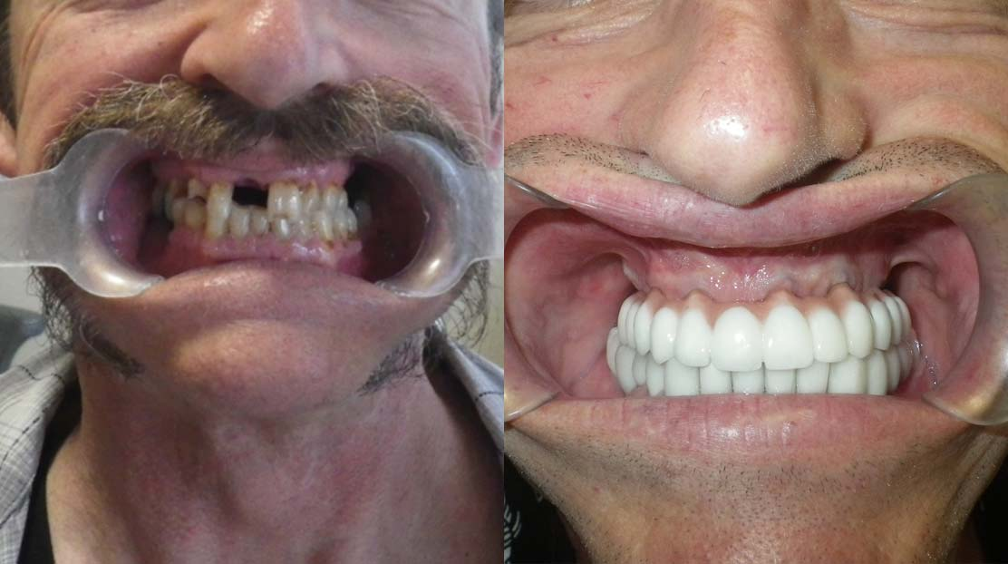 Before and after 2 a6 - Dental Implants Vacations