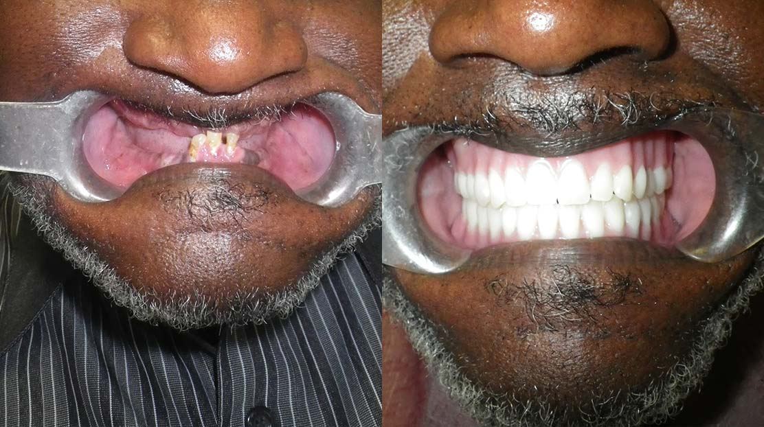 Snap in denture 7 - Dental Implants Vacations