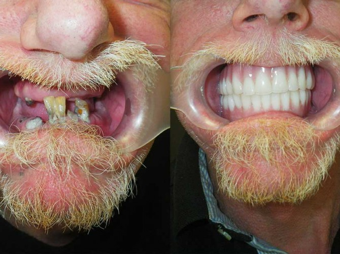 Snap in denture 3 - Dental Implants Vacations
