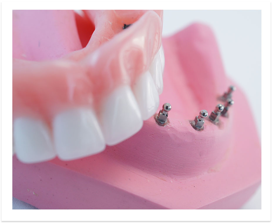 image-denture-dental-implants-vacations