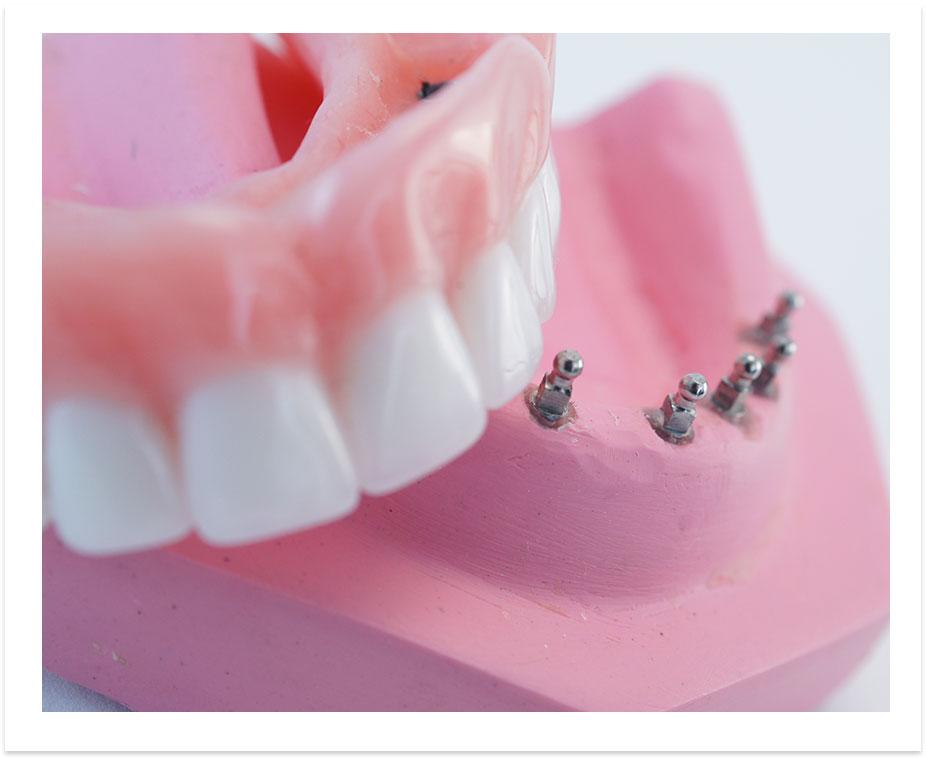 image-denture-dental-implants-vacations