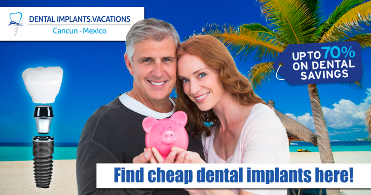 Cheap Affordable Dental Implants in Cancun