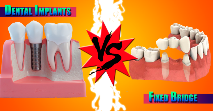 Dental Implants Vs Fixed-Bridge