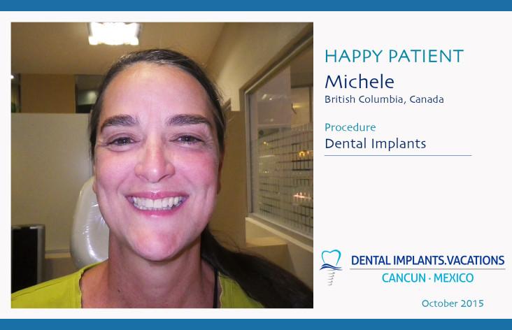 Dental Implants in Cancun
