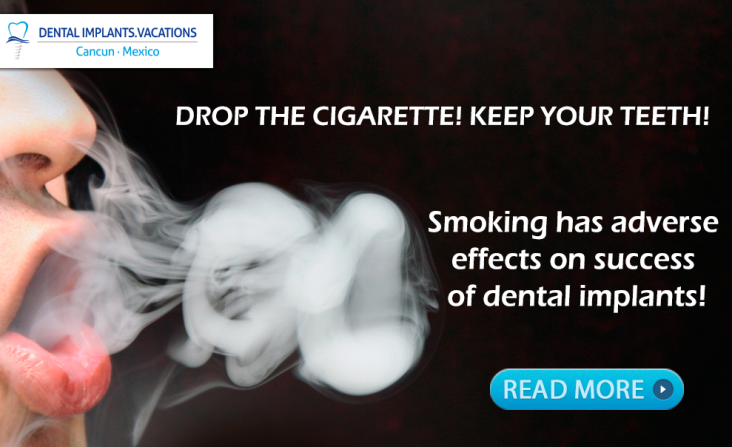 Smoking affects dental implants