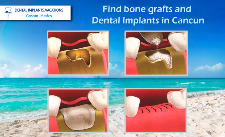 Bone grafts and Dental Implants in Cancun