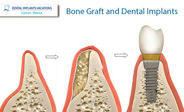 Bone Graft and Dental Implants in Cancun