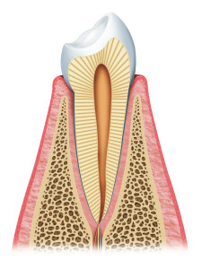 Toothache pain nerve pulp dental implants cost