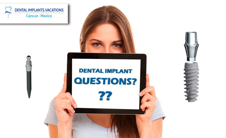 Questions about dental implants cost in Cancun