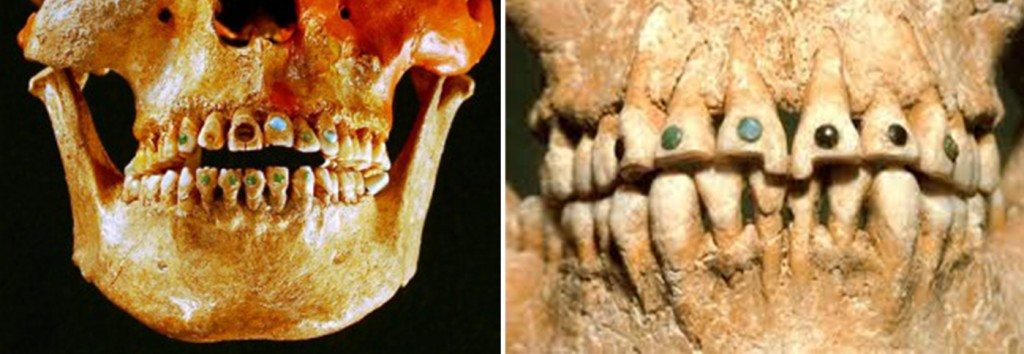Ancient Mayans And Dental Implants History And Facts