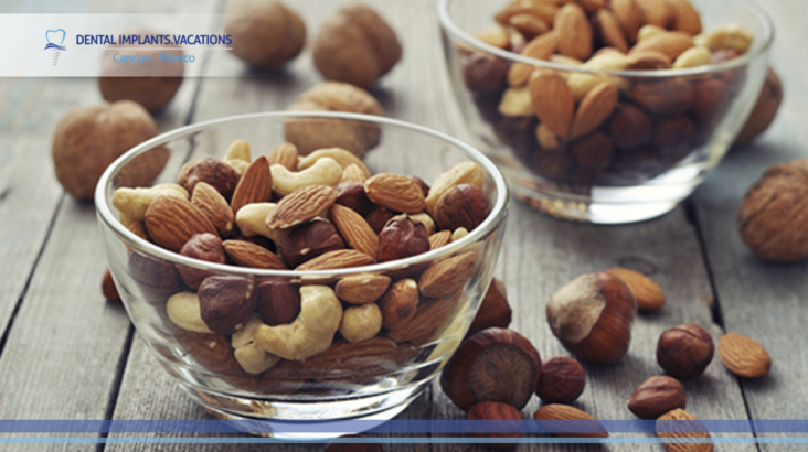 Nuts could damage your dental implants