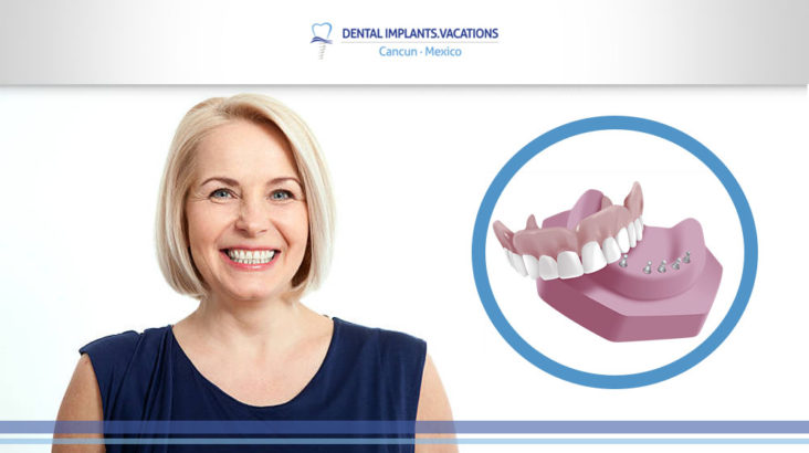 Benefits of Snap in Dentures