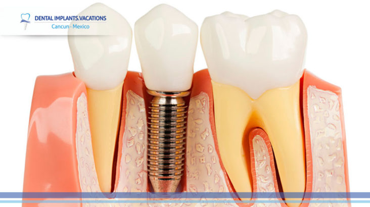 The best material for dental implants